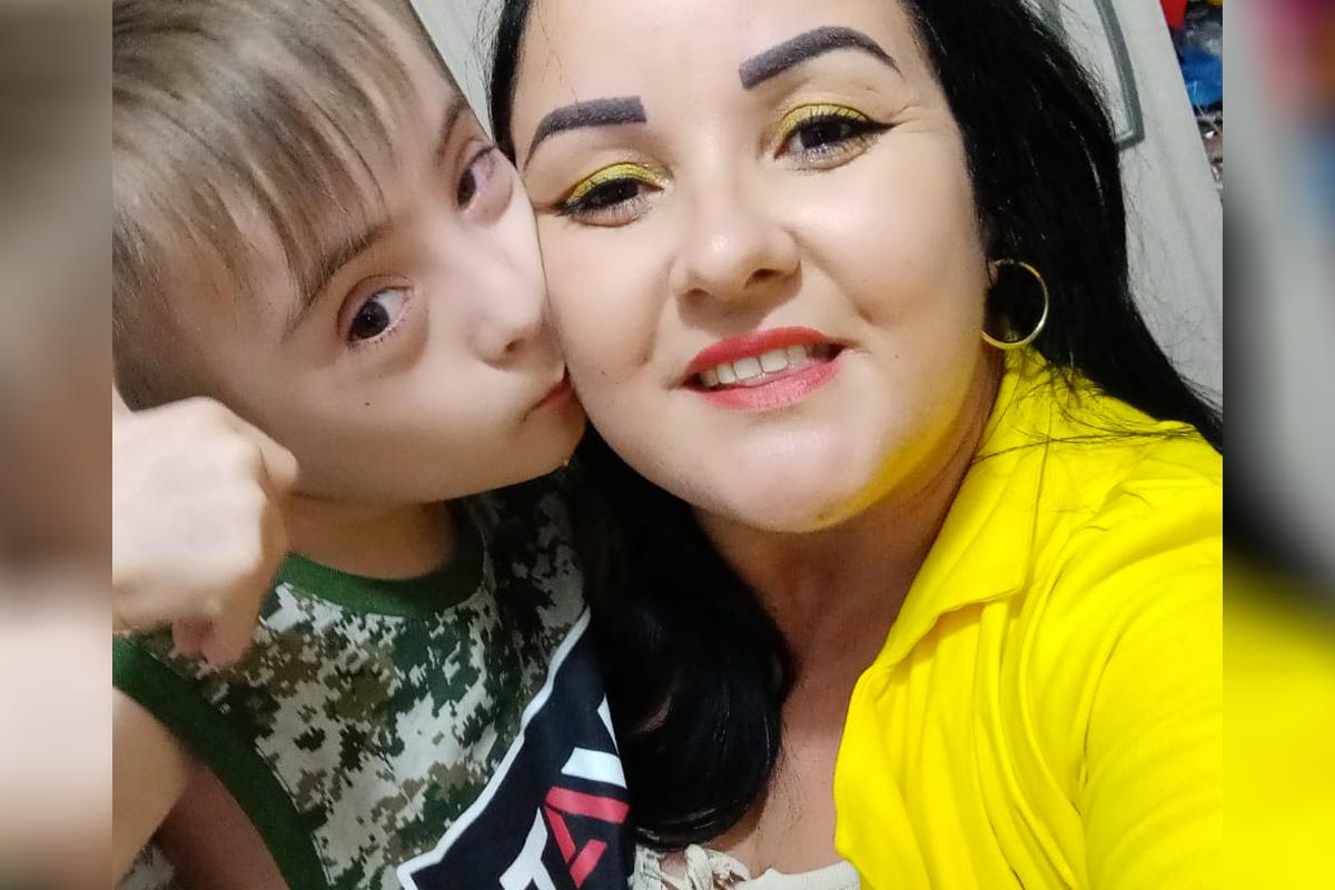 autismo e síndrome de down